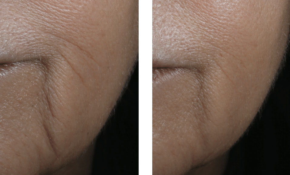Non surgical anti wrinkle treatment