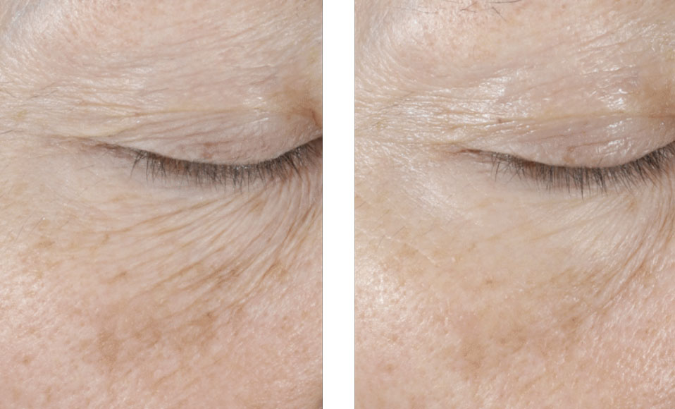 Non surgical anti wrinkle treatment for eyes