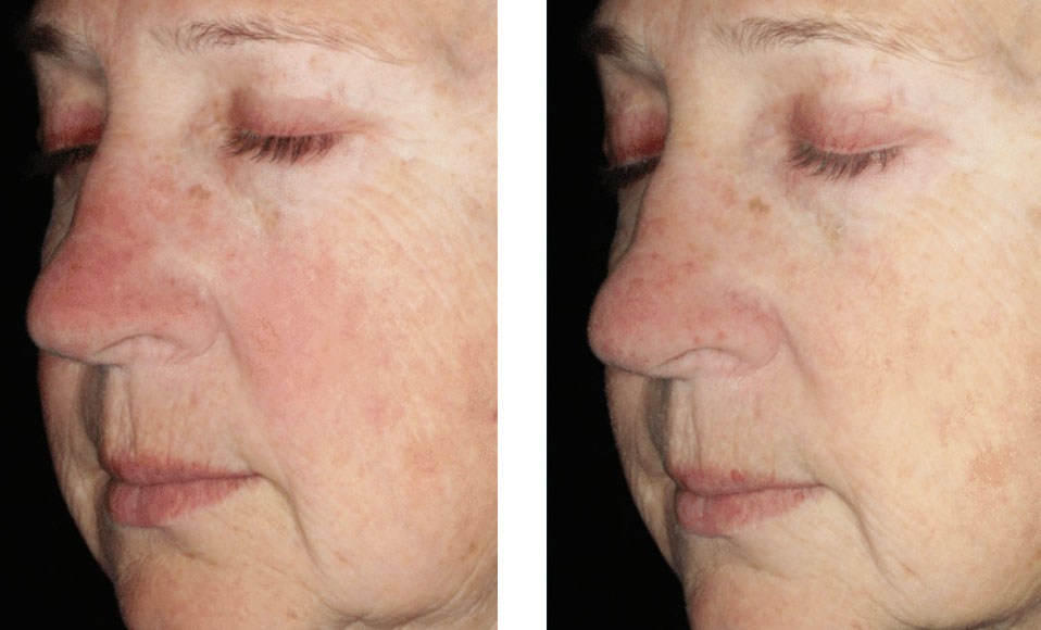 Non surgical skin redness treatment